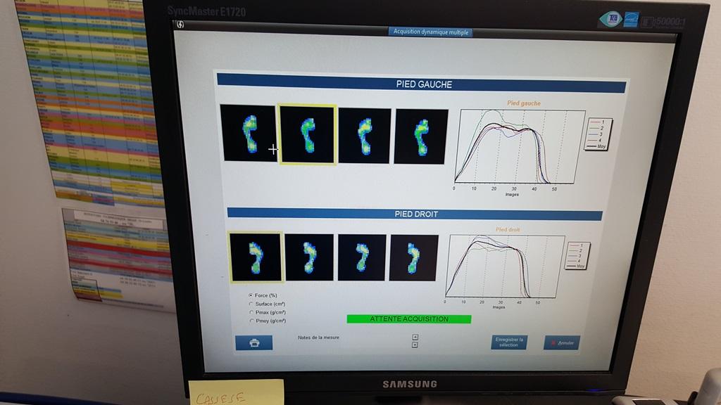 Résultats de l'analyse pied droit, pied gauche(c)MF Souchet
