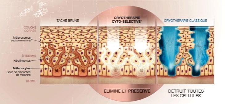 Etude cryothérapie cyto-sélective(c)Cryobeautypharma
